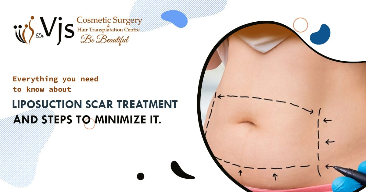Everything you need to know about liposuction scar treatment and steps to minimize it