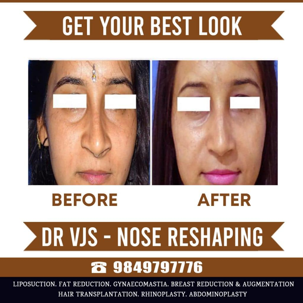 rhinoplasty nose job surgery India