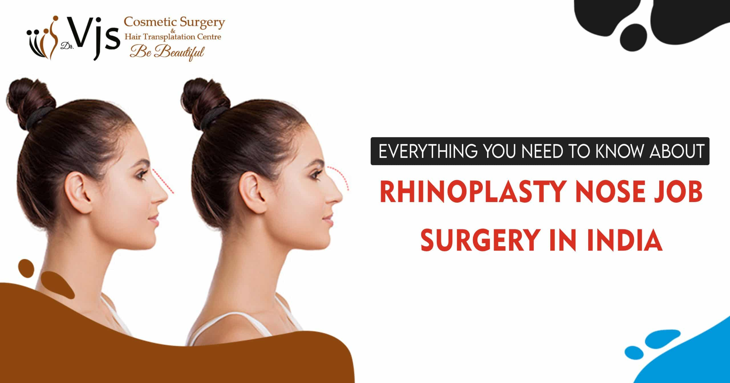 rhinoplasty nose job surgery in India
