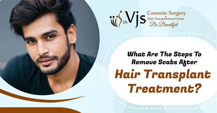 What are the steps to remove scabs after hair transplant treatment?