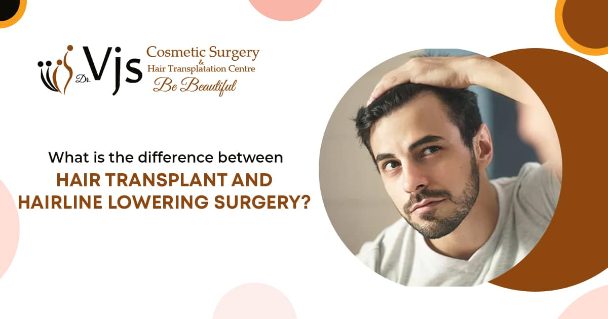 What is the difference between hair transplant and hairline lowering surgery