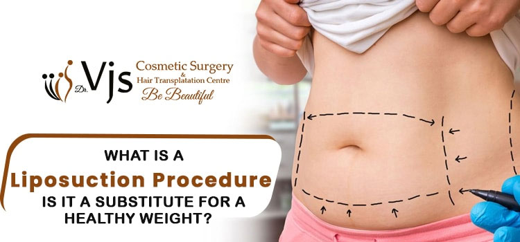 What-is-a-Liposuction-procedure-Is-it-a-substitute-for-a-healthy-weight
