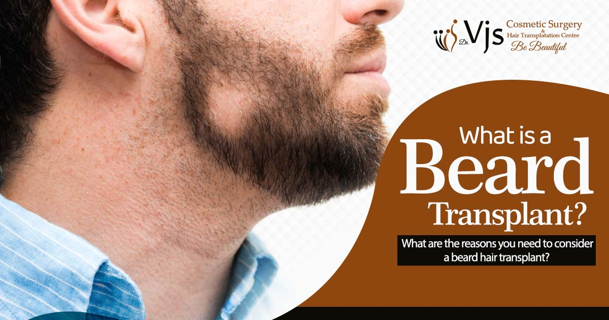 What is a beard transplant What are the reasons you need to consider a beard hair transplant