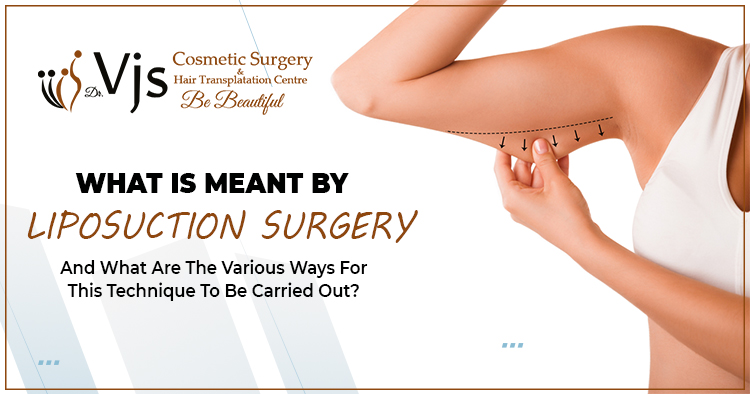 What is meant by liposuction surgery and what are the various ways for this technique to be carried out?