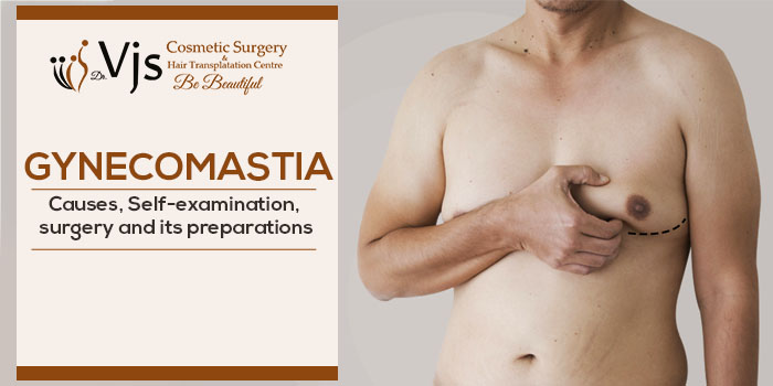 Gynecomastia – Causes, Self-examination, surgery and its preparations