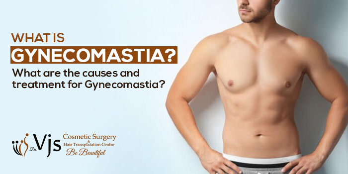 What is Gynecomastia? What are the causes and treatment for Gynecomastia?