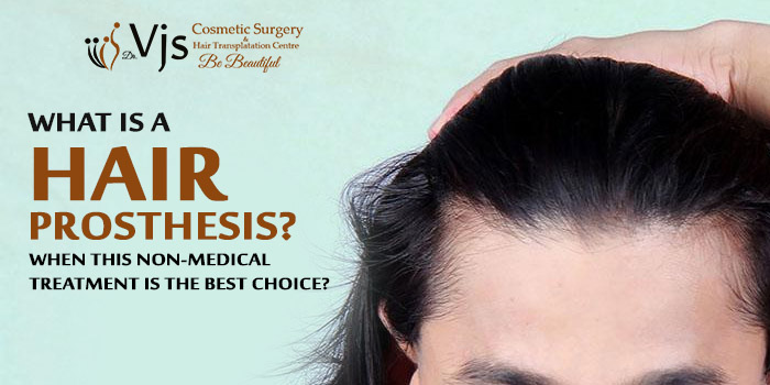 What is a Hair prosthesis? When this non-medical treatment is the best choice?
