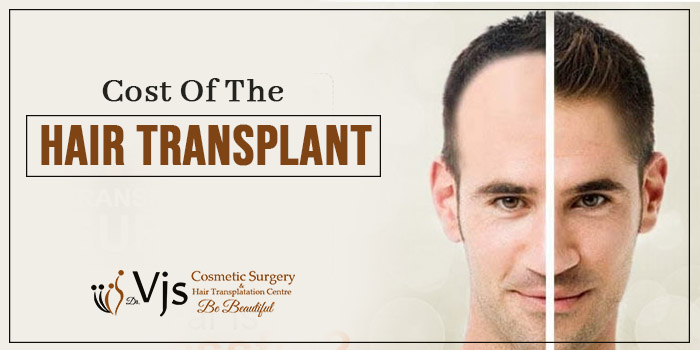 Topmost factors that thoroughly emphasis the cost of hair transplant