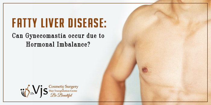 Fatty Liver Disease Can Gynecomastia occur due to hormonal imbalance
