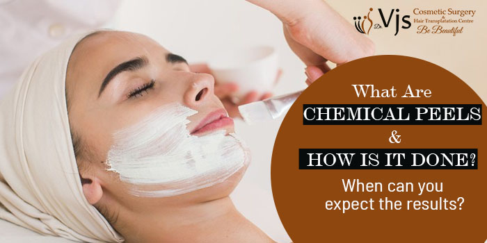 What are chemical peels and how is it done? When can you expect the results?