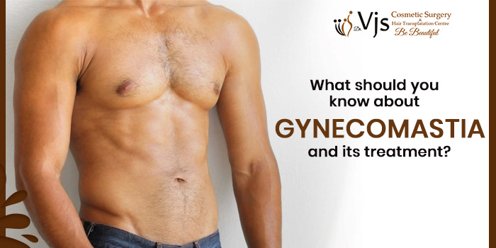 What should you know about Gynecomastia and its treatments?