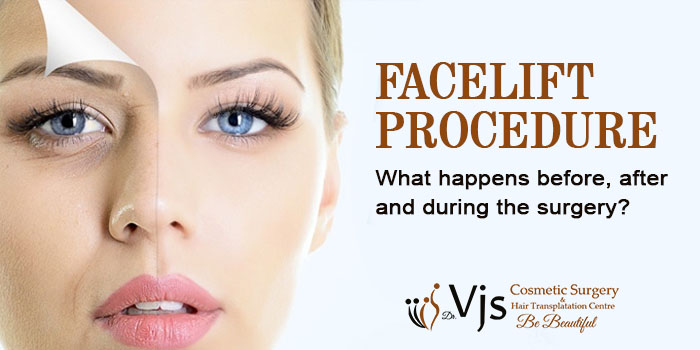 FACELIFT PROCEDURE – What happens before, after and during the surgery?