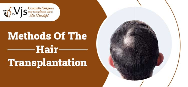 Hair Transplantation Methods: FUE, FUT, Scalp Reduction, Bio FUE & Combined Approach