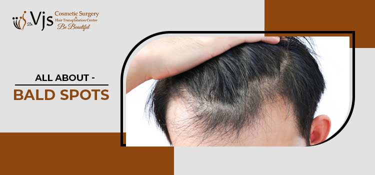 What are Bald Spots? How are these caused? How can these get treated?