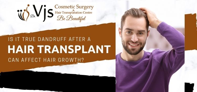 Is it true dandruff after a hair transplant can affect hair growth?