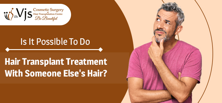 Is it possible to do hair transplant treatment with someone else's hair?