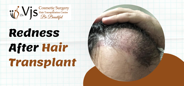 What is redness after a hair transplant? Will it affect the treatment results?
