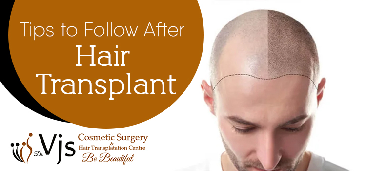 7 Tips to follow after undergoing the hair transplantation procedure